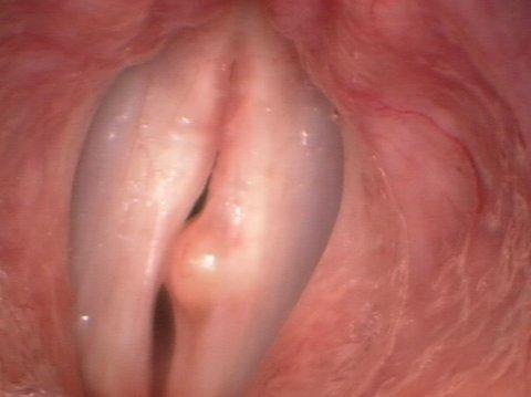 кисты голосовых складок