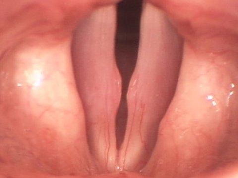 узелки голосовых связок до операции